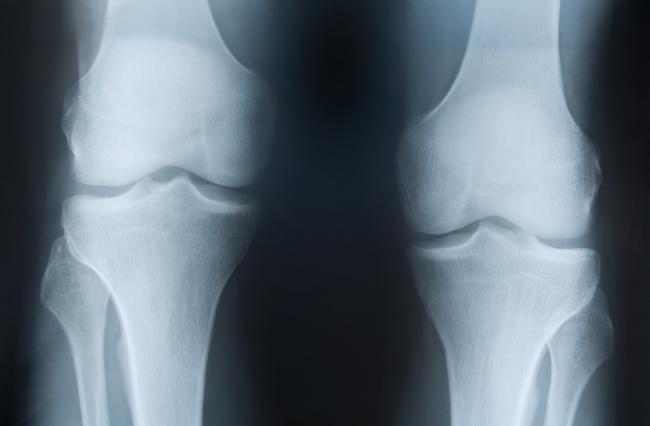 Plochá chodidla zapříčiňují nohy do X